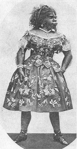 Julia Pastrana, image from a 1900 book, showing her embalmed remains. Image courtesy of Wikimedia Commons.