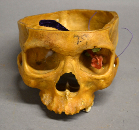 From a grouping of human bones, a portion of a skull. Sterling Associates image